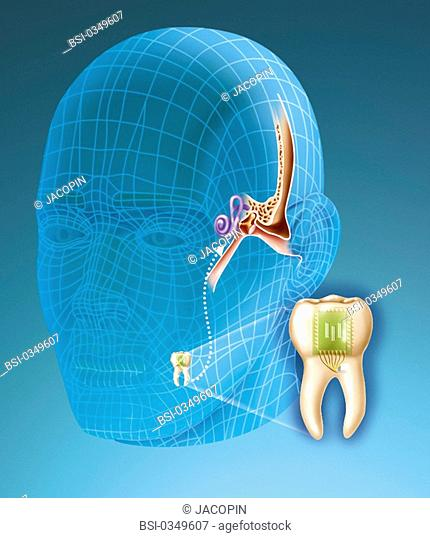 BIONICS Principle of the dental phone. Implanted into a molaire, a receptor of radio waves bluetooth type, associated to a vibrating plate
