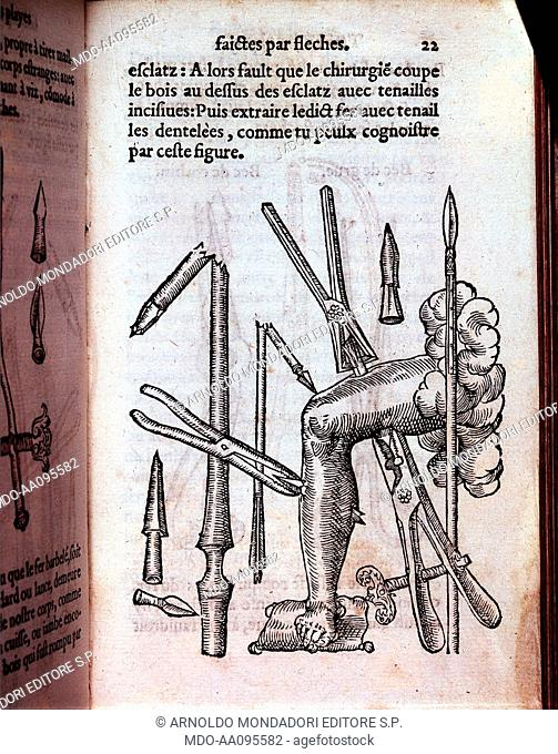 Surgical forceps (Pince chirurgicale), by Ambroise Paré, 1551, 16th Century