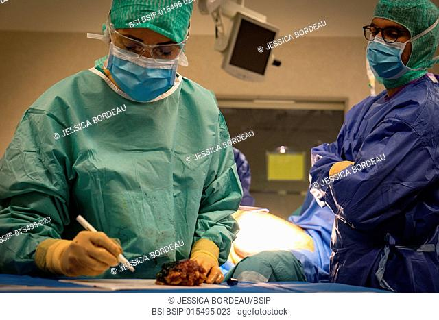 Reportage in the gynecology surgery service of the Chambéry Métropole Savoie Hospital, France. Breast conservation surgery (BCS) on breast cancer in a 67-year...