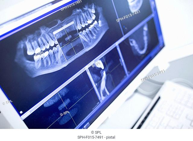 Close-up of teeth x-ray display on monitor screen in dentist clinic
