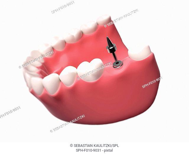 Dental implant, computer illustration
