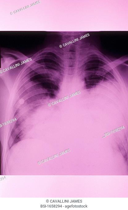 PNEUMOCOCCAL PNEUMONIA, X-RAY<BR>Severe pneumococcus infection