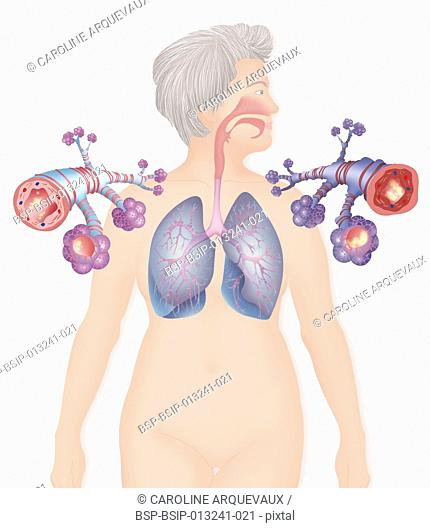 ASTHMA, DRAWING