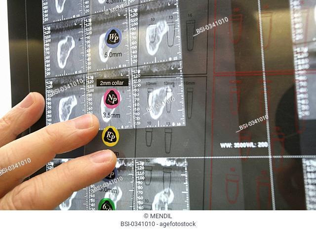 Photo essay. X-ray of preparation to the implantation