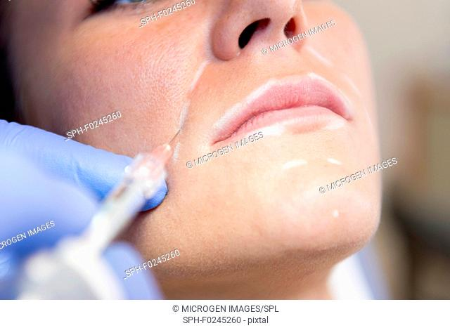 Medical procedure with hyaluronic acid