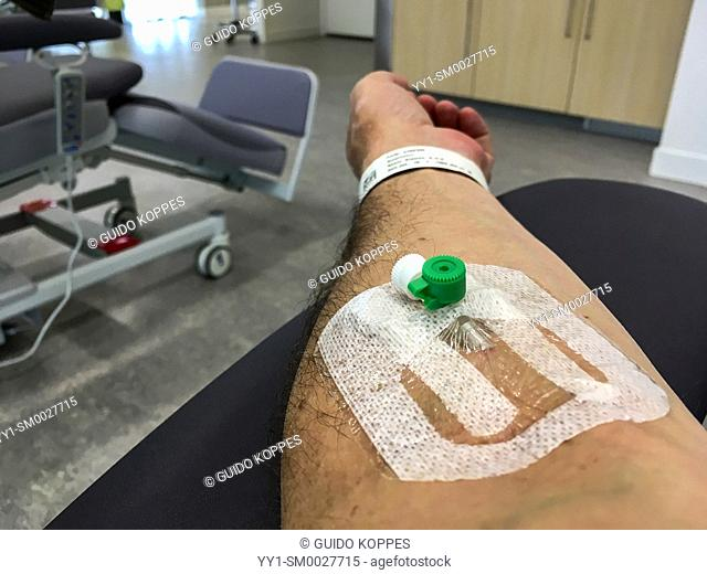 Tilburg, Netherlands. Infusion Needle inside a patient's arm during a visit to at the hospital's emercency room