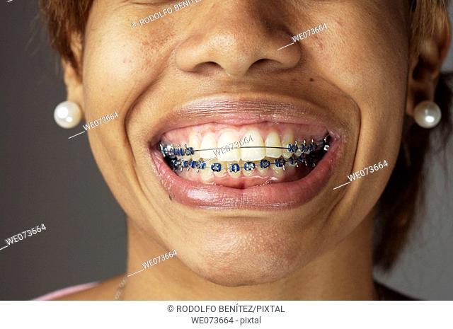 Braces in an open mouth