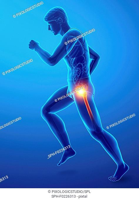 Man with hip pain, illustration
