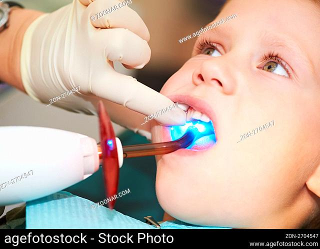 child teeth stopping treatment with dental curing ultraviolet light equipment