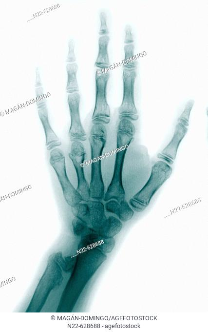 Hand bones X-ray