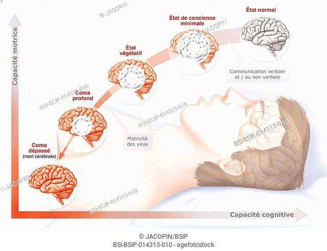 illustration of the various stages of a coma, from right to left : normal state, minimally conscious, vegetative state, deep coma