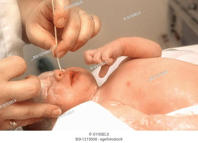 Model. Lilas maternity hospital, France. First cares of teh newborn baby. Aspiration of secretions in the nose clearance of the anatomical airway